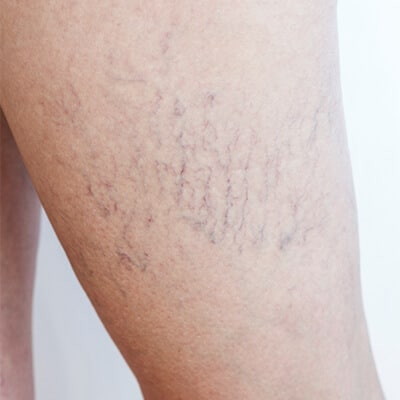 Spider Veins in the Leg